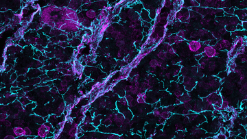A swirling galaxy of immune cells hangs suspended in space in this three-dimensional image of the early stages of an immune response.