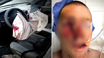 Exploding airbags put Aussies at risk