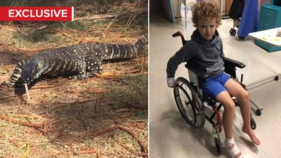 Father's warning after son bitten by goanna