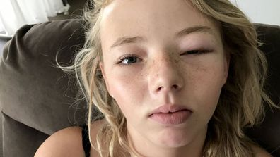 Clare Boulton's daughter Angel with her swollen eye. (Image: Caters News)