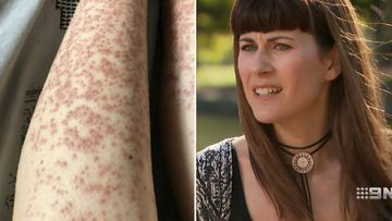 Woman left with burns after laser hair removal