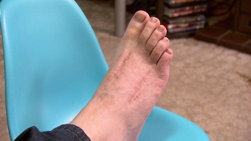 Mr Tucker's foot was crushed by 400kg of machinery.