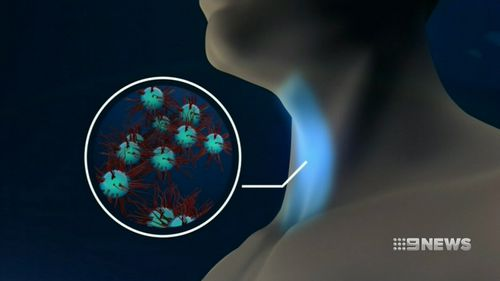 Volatile organic compounds secreted by cancer cells can be detected in the breath.