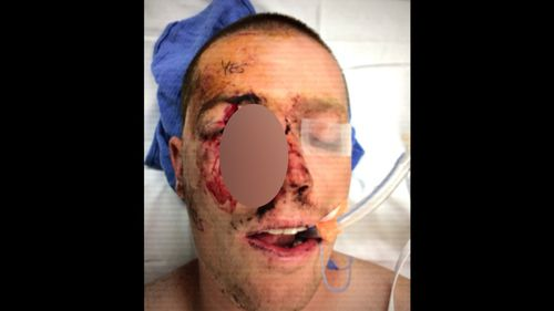 Shards of metal fly into the face of drivers at 300km/h, resulting in horrific injuries and even death.