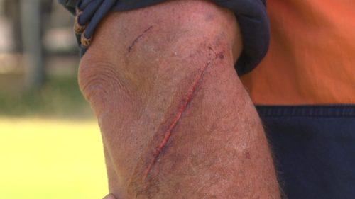 Daniel received scratches and cuts after ducking it out with a roo.