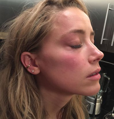 This handout photo provided by London High Court shows a photo used in evidence of Amber Heard with marks on her face that she says were inflicted by Johnny Depp, in May 2016.