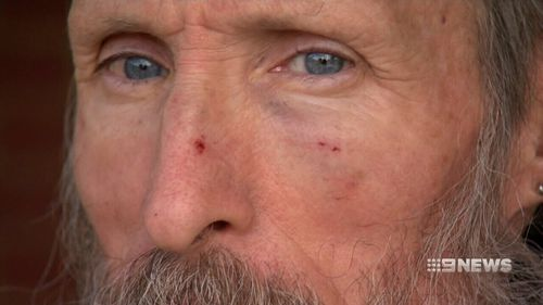 The 59-year-old was knocked unconscious. (9NEWS)