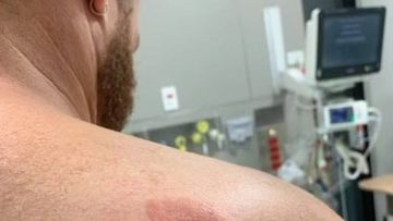 A security worker at Port Macquarie Base Hospital has a deep bite wound on his shoulder.