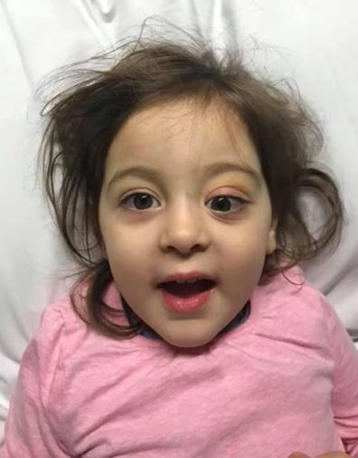 Her parents rushed her to hospital after her eye began to bulge.