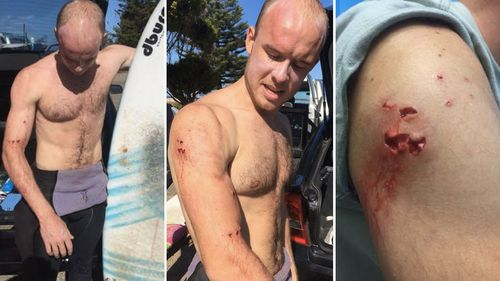 Charlie Fry shows the marks on his arm after he was attacked by a shark on a NSW beach. (Supplied)