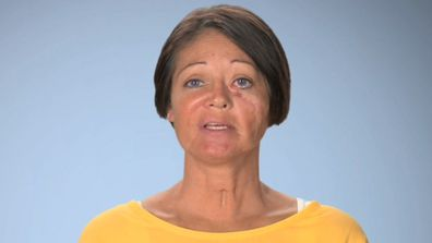 Mum receives life-changing surgery after being left with a disfigured face