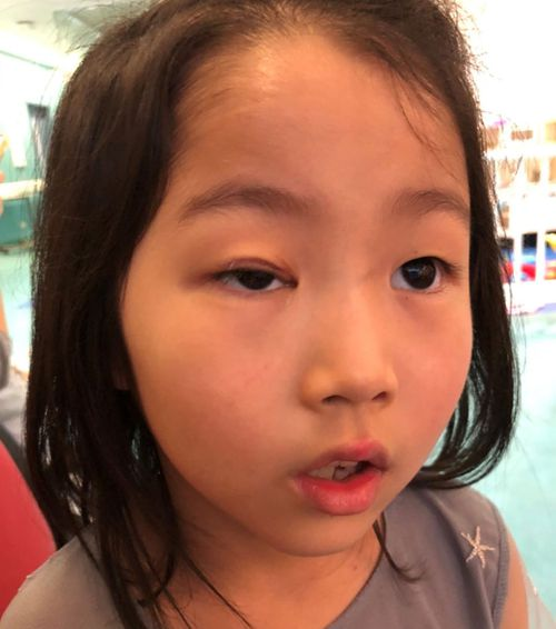 Cecilia's injured eye still looked noticeably different 10 months on from the accident, her mother said.