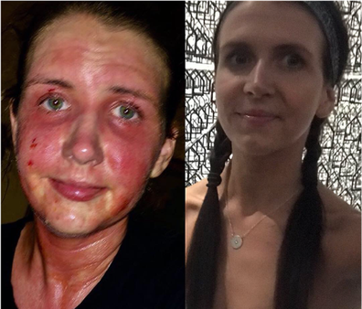 Claire eczema face