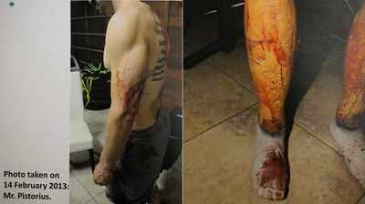 Blood seen on Pistorius' arm and his prosthetic legs.