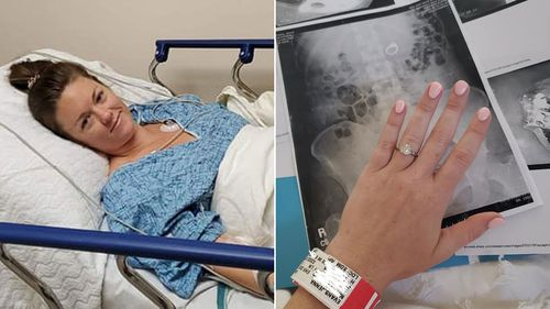 Woman swallows engagement ring in her sleep, needs surgery