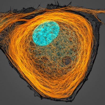 Microtubules (orange) inside a cell. Nucleus is shown in cyan