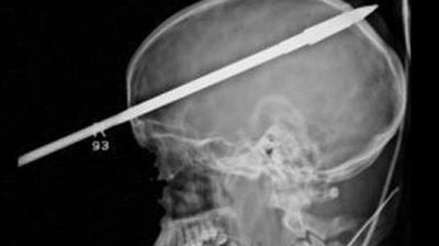 A Florida teenager made a miraculous recovery after he was accidentally shot in the head with a spear gun. Yasser Lopez, 16, was fishing with friends when a spear gun they had went off, shooting a spear straight into the teen's skull. The spear manage to miss all major blood vessels in Lopez's brain.