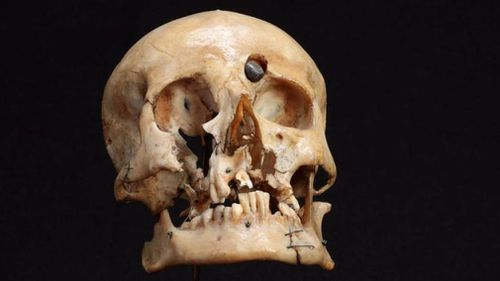 US museum agrees to return skull of ANZAC soldier to Australian Army