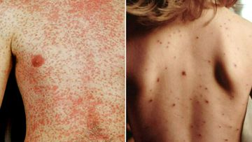 Measles alert issued after two new cases reported in NSW
