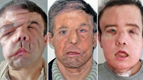 Man survives second face transplant