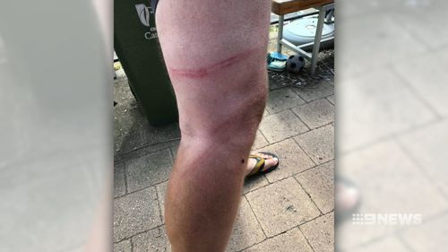A number of people bruised and scratched in the fighting and security guards were spat on. (9NEWS)