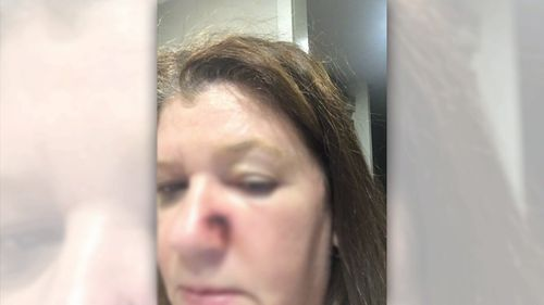 Ms Pratt said Weinstein told her she would have to cauterise her nose.