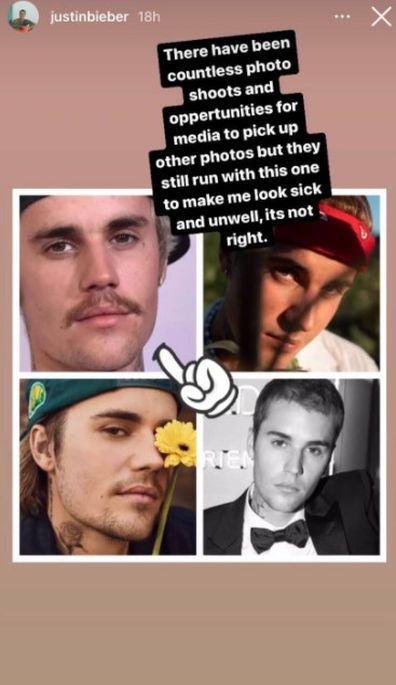 Justin Bieber calls out media for continuing to share images of him looking unwell.