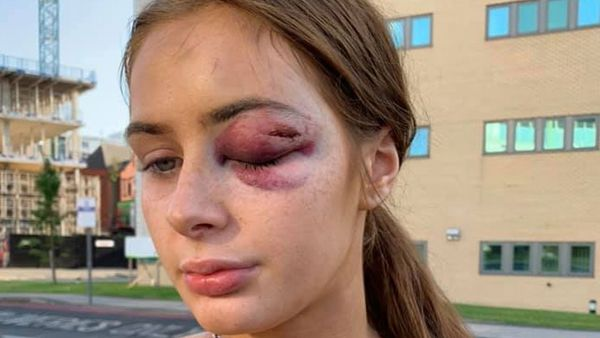 Teen attacked for turning down strangers' advances.