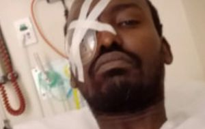 Man who lost eye in road rage incident 'forgives' alleged attacker