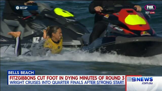 Fitzgibbons sustains badly-cut foot at Bells