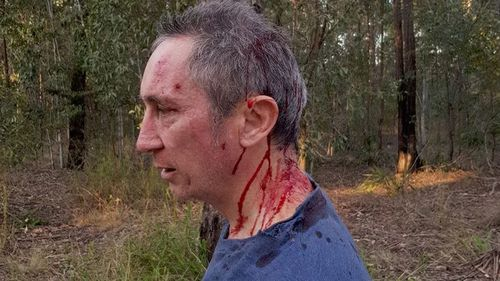 Pisasale opponent Jim Dodrill attacked in Ipswich bushland