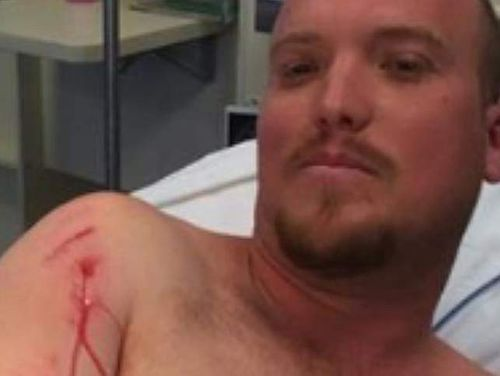 Darwin man battled for his life with 2.5m saltwater croc