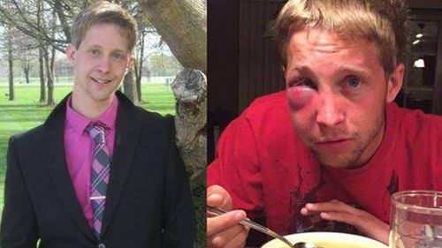 Bullied teen with Asperger's drops charges and asks attackers to do disability-related community service