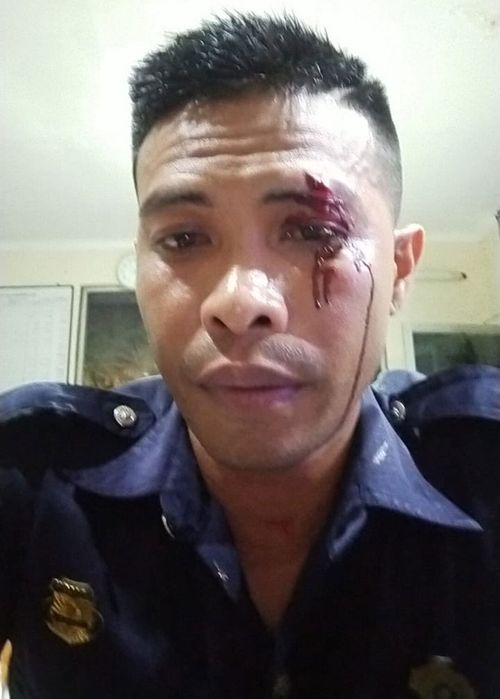 Bali bouncer Adni Junus Liu  allegedly punched by Australian teen Zac William Whiting 2