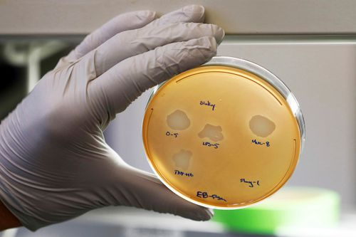 A petri dish containing the Pseudomonas aeruginosa lung samples grown from patient, Balasa.