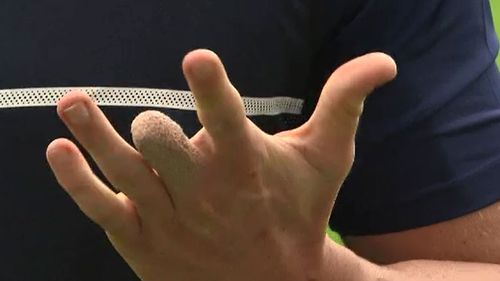 The four fingers that remain. (9NEWS)