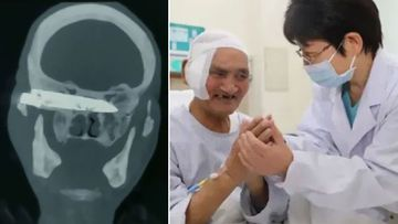 A man has had a knife removed from his skull years after a violent mugging.