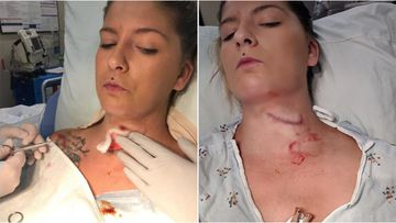 Kendra Jensen was rushed to hospital when a shard flew out from under the lawn mower and slashed open her neck from across the yard.