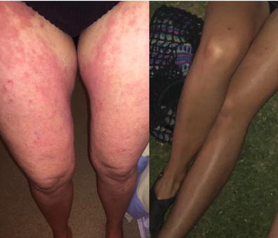 Claire eczema legs