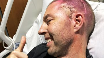 Nick Stephens pictured after his second brain surgery.