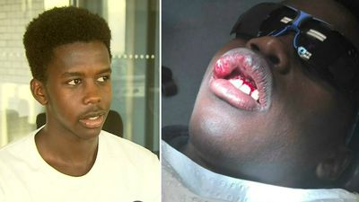 Teen's teeth knocked out after footy field 'racial abuse'