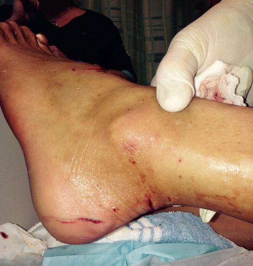 Kirra-Belle Olsson's foot after shark bite. (Supplied)