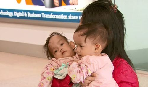 They will undergo the surgery after a fundraising effort by the Children First Foundation.