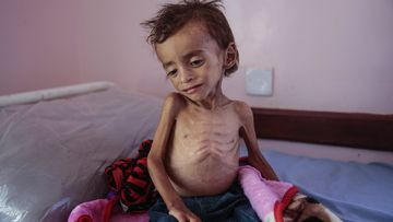 A malnourished boy sits alone at Yemen's Aslam Health Centre in Hajjah in August.