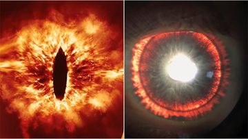 A man in the US has a rare eye condition that makes is eyes look like the Eye of Sauron.