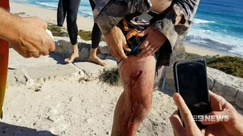 The surfer suffered a deep gash to his thigh. (9NEWS)