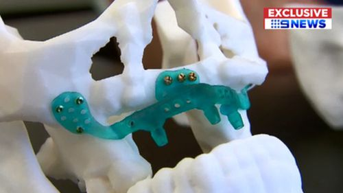 The 3D printed jaw.