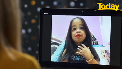 Jyoti Amge was named as the World's Shortest Woman by Guinness World Records.