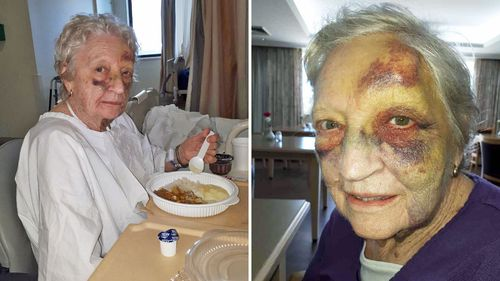 Photos showing the bruising Mrs Heffernan sustained during   the witnessed incident in January.