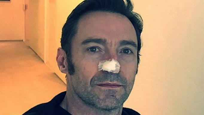 Hugh Jackman's recent treatment was the fifth to remove skin cancer cells from his nose.